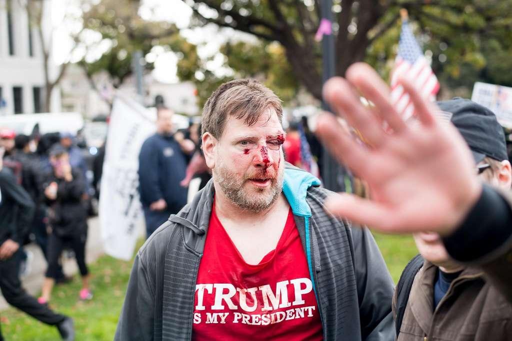 Violence Berkeley Rally 4 Trump