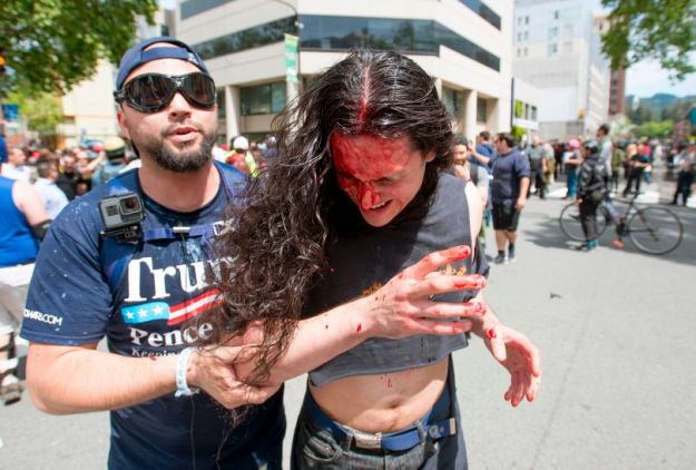 Wounded pro-Trump protestor at Berkeley riot.